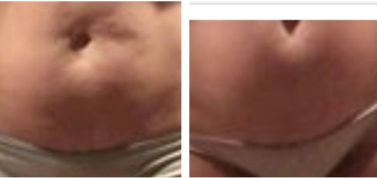 """You may not be """"fat"""", your belly may """"FASCIA BOUND""""!! The FasciaBlaster™ separates the fascia from the other structures and flattens barrel tummies, and breaks up fat cells in the subdural fat layer! Here's how: http://youtu.be/3o36M7bPJjY"""