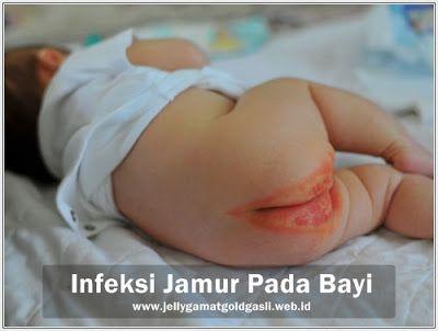 Obat Infeksi Jamur Pada Bayi Di Apotik  Infeksi jamur merupakan masalah kulit yang sangat menyebalkan. Infeksi ini menyebabkan gatal yang cukup merepotkan. Jika orang dewasa saja kerepotan oleh infeksi jamur ini, apalagi dengan bayi dan anak-anak kecil ya.. Bisa Anda bayangkan betapa menderitanya mereka.  http://www.jellygamatgoldgasli.web.id/2017/04/obat-infeksi-jamur-pada-bayi-di-apotik.html