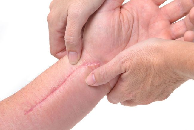 Tips on how to soften your #scar #massage