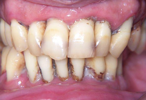 Gingivitis y Periodontitis: enfermedad de las encías