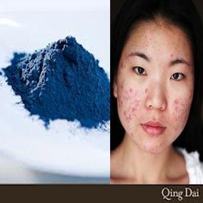 Tratamiento del acné utilizando Qing Dai (Indigo Naturalis).