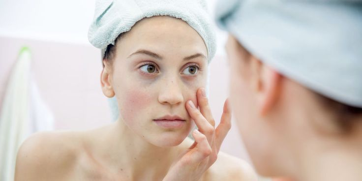 6 Blotchy Skin Causes - Common Skin Care Mistakes That Cause Redness