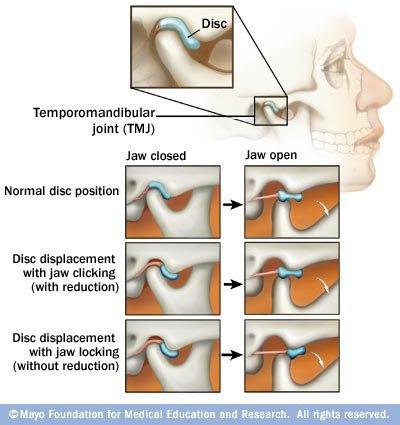 Tratamente ale Articulatiei Temporo-Mandibulare - Centrul Ortodontic Cluj