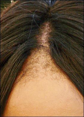 It is time to turning off being distressed over your loss of hair and time to start doing something about it. Take the suggestions from www.bestforhairregrowth.com and find more info on how to get your head of hair back!