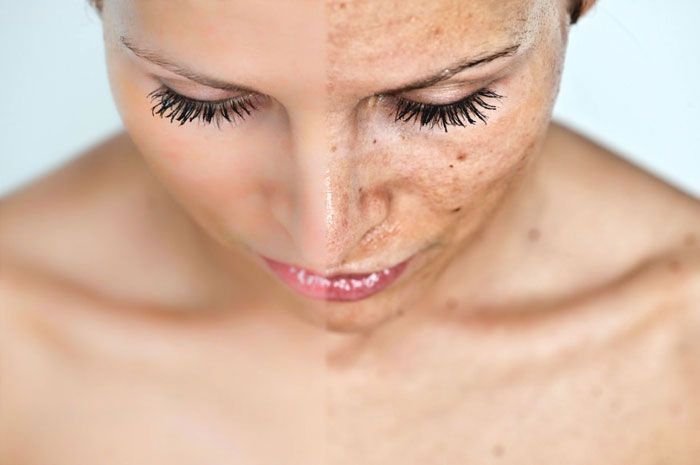 #Melasma treatment: How to fade #hyperpigmentation