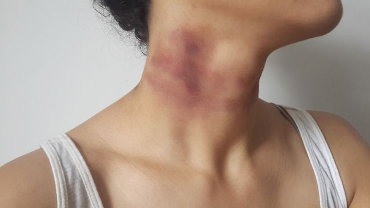 Bruised neck strangulation tutorial