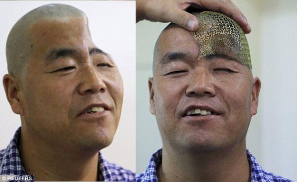 Chinese Man Loses Half His Skull – Doctors to Return Him to Normal w/ 3D Printed Titanium Mesh http://3dprint.com/13192/3d-printed-skull-chinese/