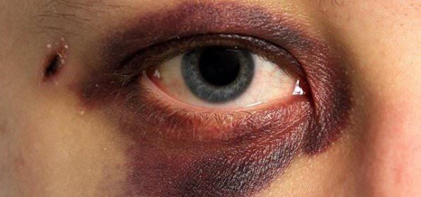 How to get rid of black eye? Remedies for black eye. Cure black eye fast and naturally. Avoid black eye. Prevent black eye. Ways to treat black eye at home.
