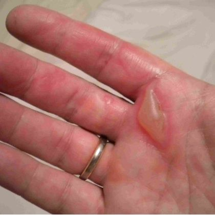Eight Excellent Home Remedies For Burns on Fingers/Hands (good to know fellow lampworkers!)