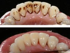 anúncios Com esta dica genial, e sem efeitos secundários, vais puder ficar com os dentes brancos e brilhantes, removendo a placa bacteriana, em apenas 5 minutos, e sem saíres de casa. Aproveita já, e melhora o teu sorriso! O tártaro é a acumulação de sais de cálcio e de fósforo na superfície dos dentes. Esta …