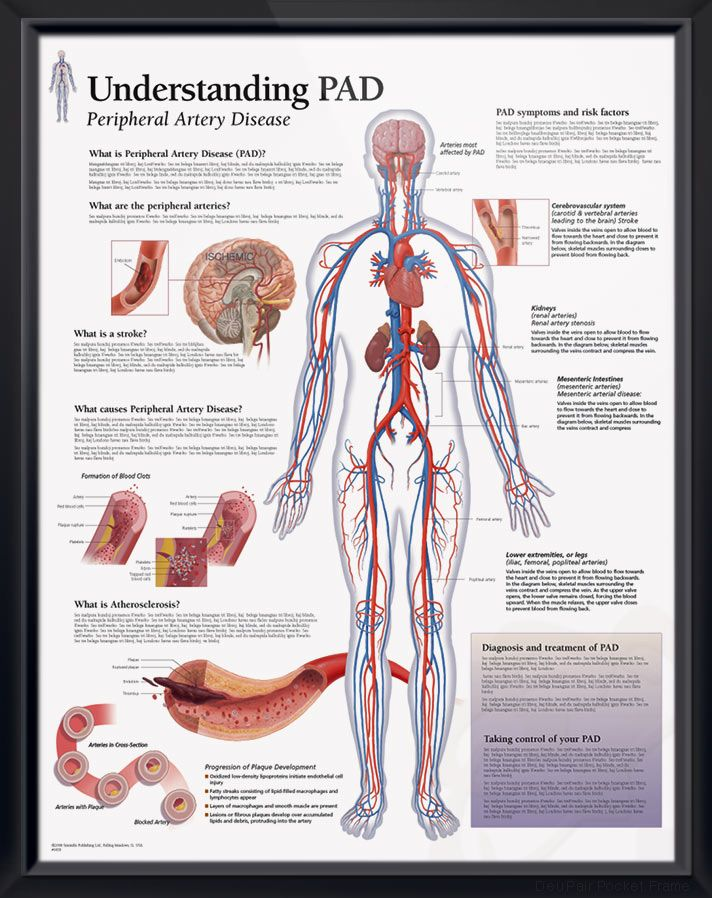 Understanding PAD anatomy poster defines peripheral artery disease, causes, and risk factors. Cardiovascular chart for doctors and nurses.