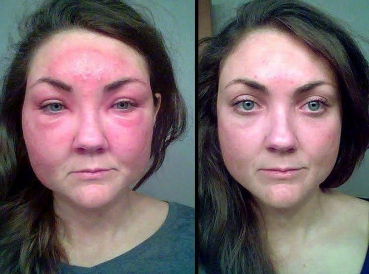soothe to the rescue for bethany u0026 39 s allergic reaction