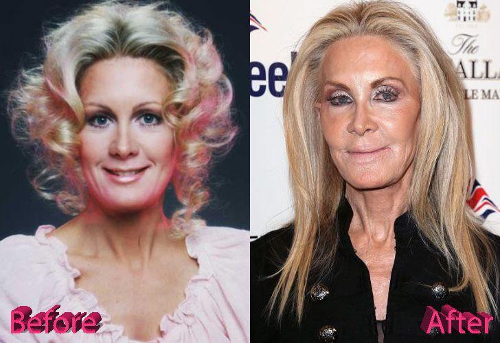 Joan Van Ark Plastic Surgery Before And After Joan Van