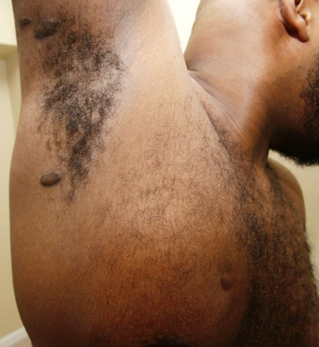 Gregory Love shows his gunshot wounds in Maple Heights, Ohio.