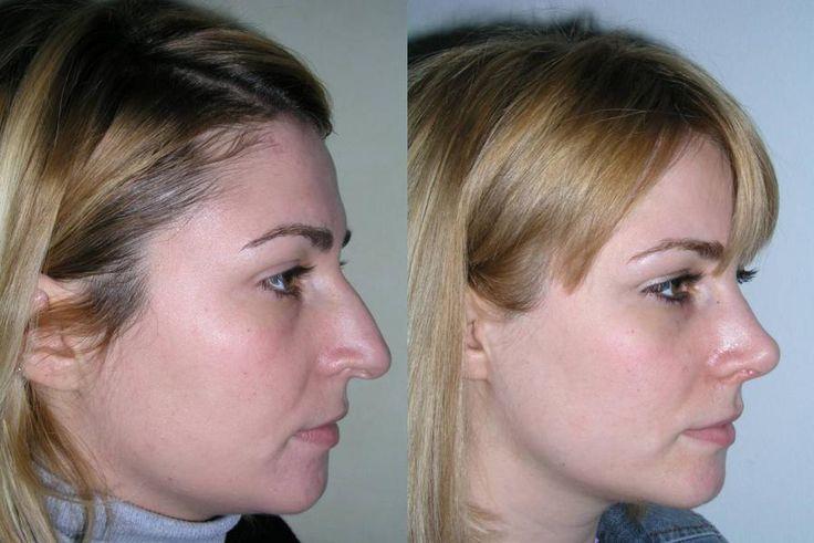 Les 8 meilleures images propos de nez sur pinterest photos et montpellier - Bosse sur le nez apres coup ...