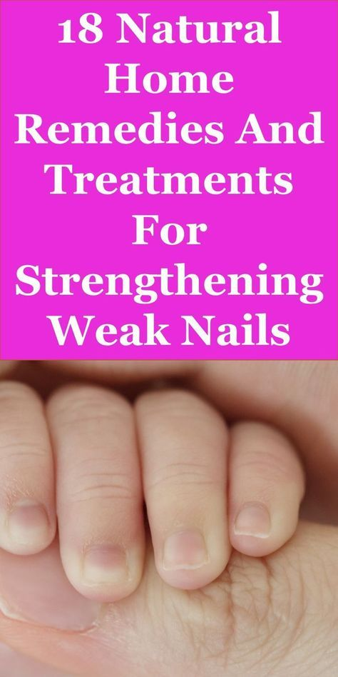 This Article Discusses Ideas On The Following; Hypothyroidism Nails Pictures, Thyroid Disease Fingernails, Hyperthyroid Nails, Hypothyroidism Lunula, Hypothyroidism Nail Ridges Pictures, Lunula Only On My Thumbs, Can Thyroid Problems Cause Nail Problems?,