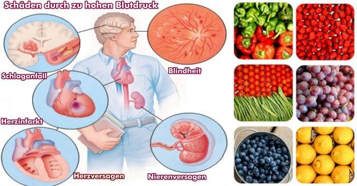 Das Märchen von Bluthochdruck – 12 Wege den Blutdruck natürlich zu senken, ohne Medikamente zu verwenden