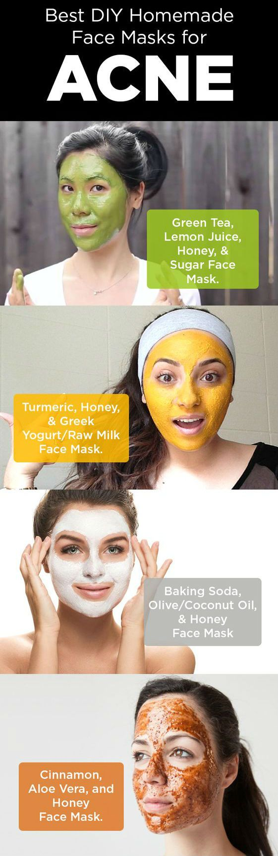 Here are some best ways of applying face masks to cleanse your skin and thereby to clear acne and its scars. #Acne#DIYRemedies