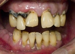 Smoking and teeth: Staining, gum disease and tooth loss are the main effects seen here    Read more dentalcarematters...