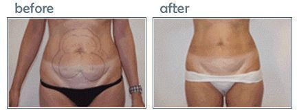 LipoTherme Before and After Photos: Abs Liposuction – –