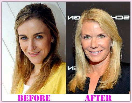 Katherine Kelly Plastic Surgery Before And After Katherine ...