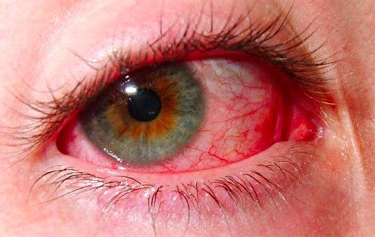 8 remèdes de grand-mère pour soigner une conjonctivite et quelques conseils noté 4 - 5 votes 5) La compresse de camomille Dans de l'eau tiède à chaude (non bouillante) versée dans une tasse, laissez infuser un sachet de camomille pendant 2 ou 3min. Placez cela sur l'œil affecté bien fermé pendant 10min à raison de...