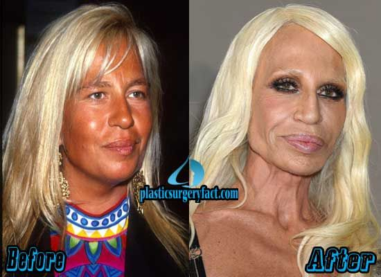 Donatella Versace Plastic Surgery Gone Wrong | http://plasticsurgeryfact.com/top-10-pictures-of-celebrity-plastic-surgery-gone-wrong/