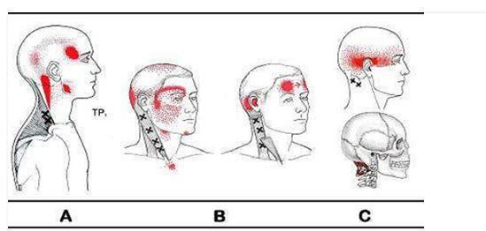 Peut de cervical osteokhondroza se lever la pression