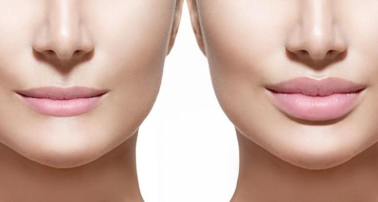 5 Most Important Things You Need to Know Regarding Lip Fillers Before Getting Them