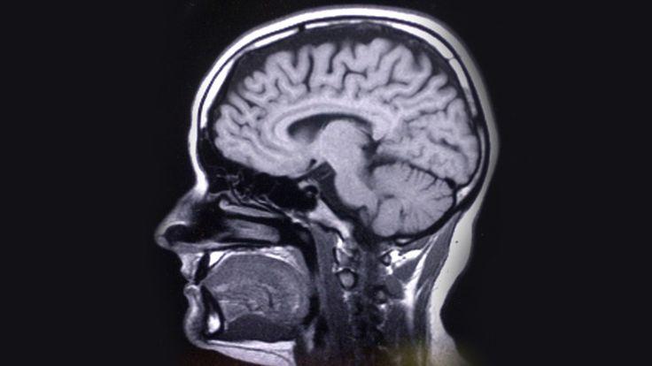 Adhd syns i fem områden av hjärnan. Antibiotikaresistenta bakterier hos barn har ökat dramatiskt. Veckomagasinet tittar också in i desmå hoppstjärtarnas ...