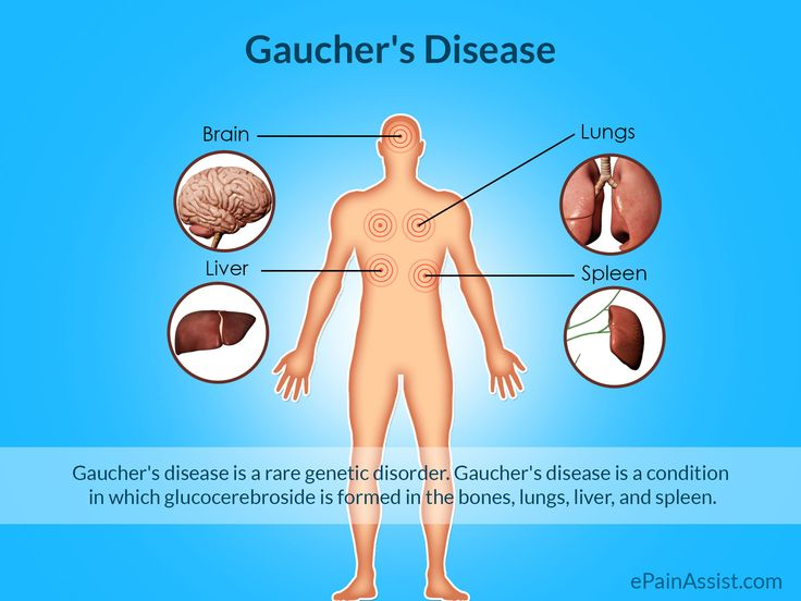 Gaucher's Disease or Glucosylceramidase Deficiency