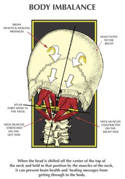 Just found out from X-rays that I have this. Excited ti be closer to a full recovery. The Effects of the Atlas Subluxation