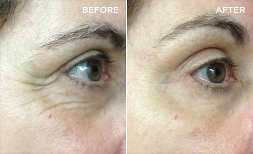 SEACRET WORKS!!!!  Before and Afters http://www.seacretglobalmember.com/