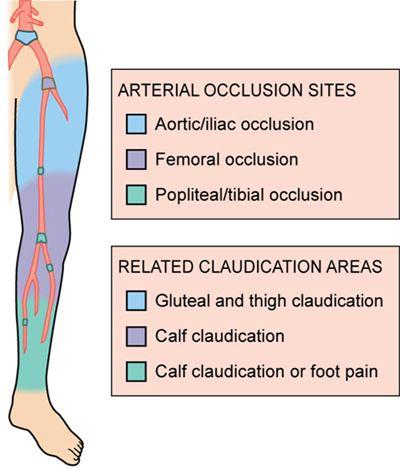 Peripheral arterial disease                                                                                                                                                     More