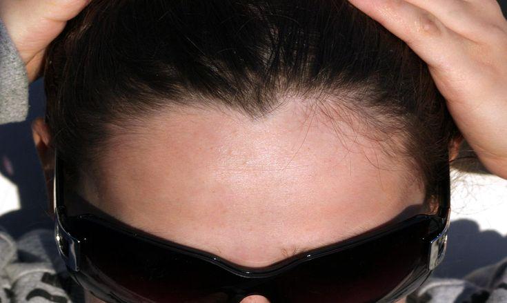 """Y tú… ¿También tienes """"pico de viuda"""" en la linea de tu cabello? Sabemos que ahora mismo debes estar delante de un espejo echando hacia atrás tu cabello para ver si el inicio de tu linea en la frente se caracteriza por un singular pico más o menos marcado. Si es…"""