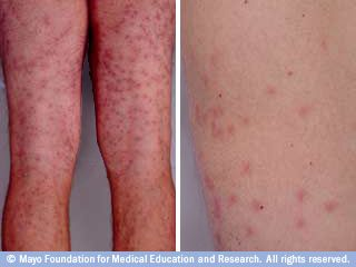 13 pictures of common skin rashes