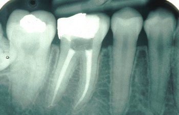 Occasionally a tooth is cut into bits (that is sectioned) prior to it is removed.   http://generaldentistries.weebly.com/blog/whitening-your-teeth