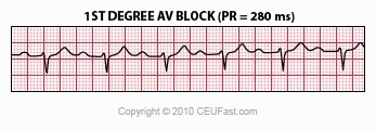 First Degree AV Block The normal PR interval (PRI) is 0.12 - 0.20 sec, or 120 -to- 200 ms. 1st degree AV block is defined by PR intervals greater than 200 ms. This may be caused by drugs, such as digoxin; excessive vagal tone; ischemia; or intrinsic disease in the AV junction or bundle branch system.