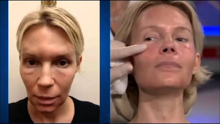Dr. Ourian Demonstrates Fractora - 'The Mini Face Lift'. #Beauty #Treatment #Fractora