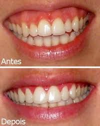 Resultado de imagem para allergan produtos botox dentista   Aleixo  Fotografia   Odontologia, Tratamento odontologico e Atendimento odontológico 626636c06e