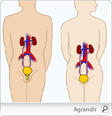 Reduire le rique d'infection urinaire