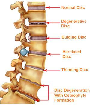 Diagram of spinal discs. Normal disc, degenerative disc, bulging disc, herniated disc, thinning disc, disc degeneration with osterphyte formation.  #chiropractic #chiropractor #health #spine #anatomy #backpain #wellness #love