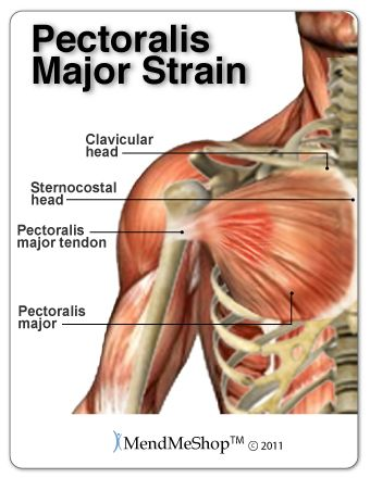 1000 Ideas About Muscle Strain On Pinterest Sore Body