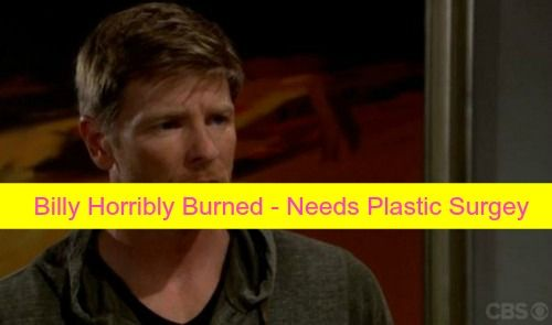 """""""The Young and the Restless"""" (Y&R) spoilers tease that Billy Abbott  will get badly burned in the fiery blaze, resulting in his needing"""