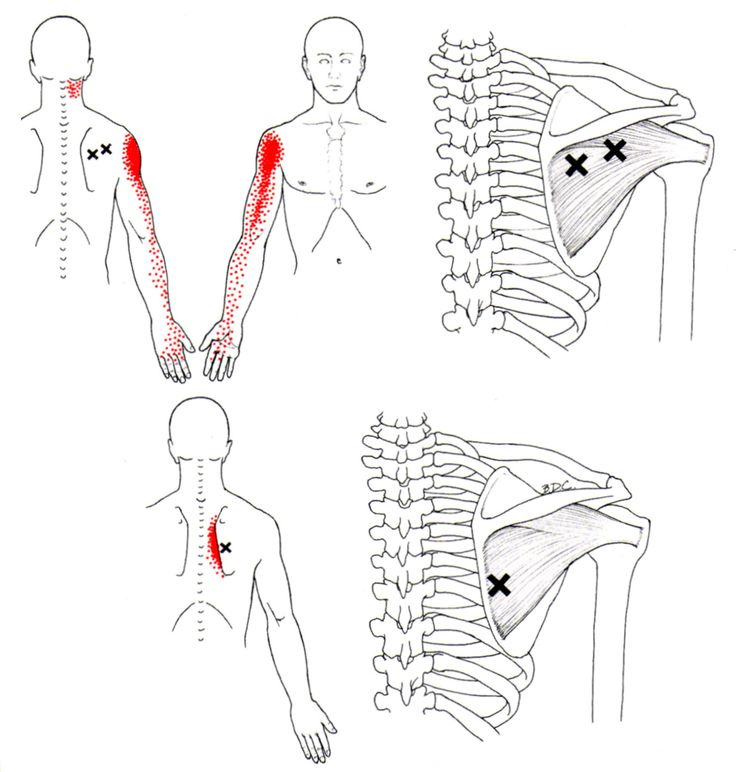 Infraspinatus | The Trigger Point & Referred Pain Guide. For Upper Back, Shoulder, and Arm pain.