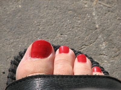 Home Remedy for Thick Toenails: Dark Nails, Unsight Toenails, Bleach Toenails, Toenails Fungus, Baking Sodas, Toe Nails, Nails Polish, Dark Nail Polish, Treats Toenails
