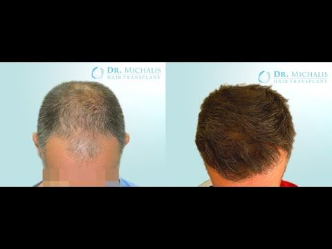 2979 Grafts FUE Hair Transplant Dr. Michalis : for more information visit our website: http://www.hairtransplant-drmichalis.com/real-cases/