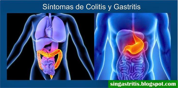 Las principales diferencias de síntomas de la colitis y la gastritis
