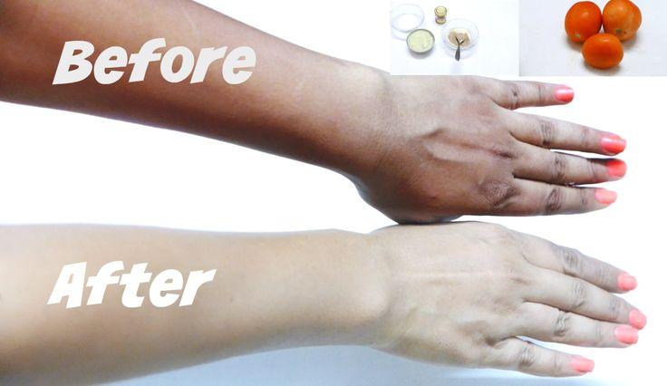 How to brighten skin color in 2 days legs hands neck