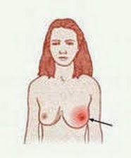 Гемангиома на голове у взрослого причины и лечение